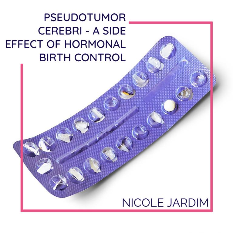 Pseudotumor Cerebri - A Side Effect Of Hormonal Birth Control