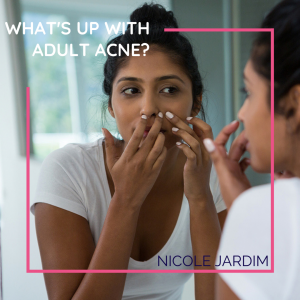 What's up with Adult Acne?